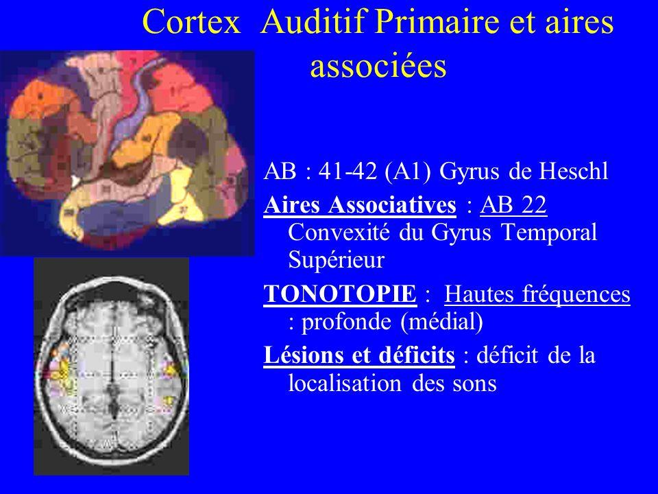 Cortex Auditif Primaire et aires associées