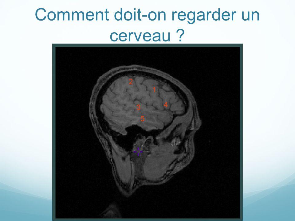 Comment doit-on regarder un cerveau