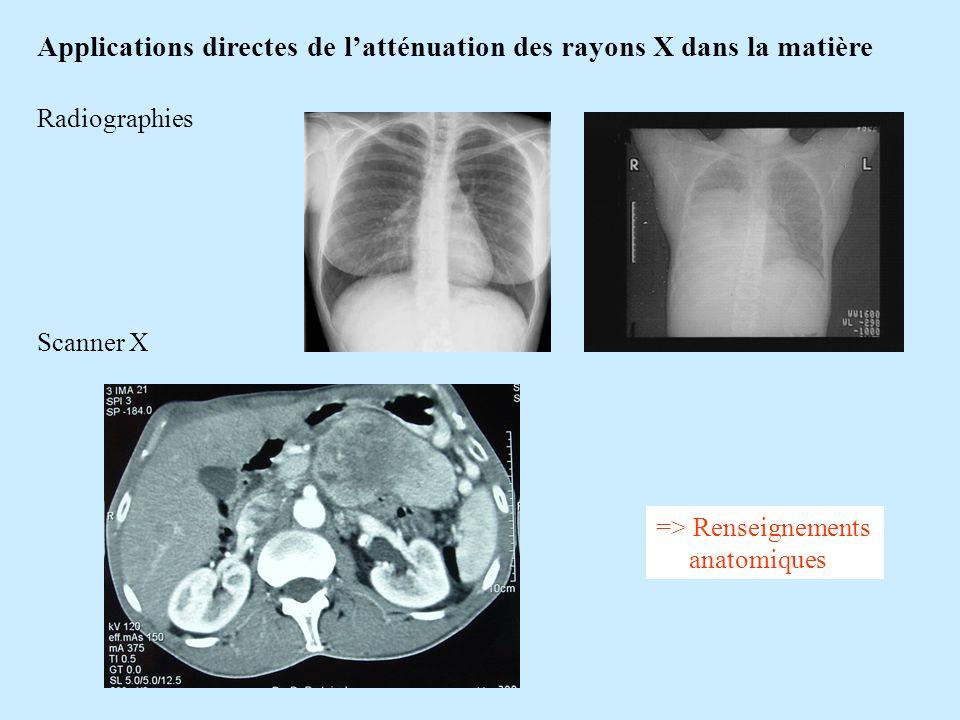 Applications directes de l'atténuation des rayons X dans la matière