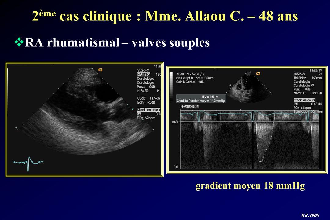 2ème cas clinique : Mme. Allaou C. – 48 ans