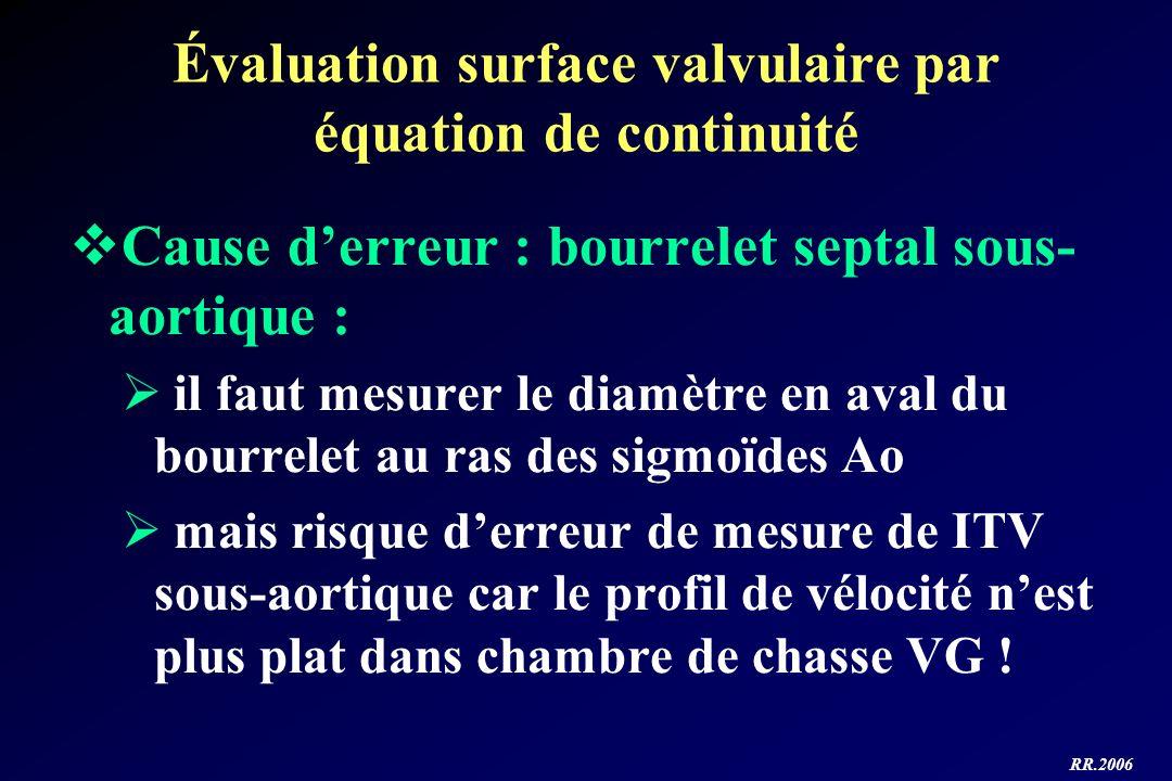 Évaluation surface valvulaire par équation de continuité