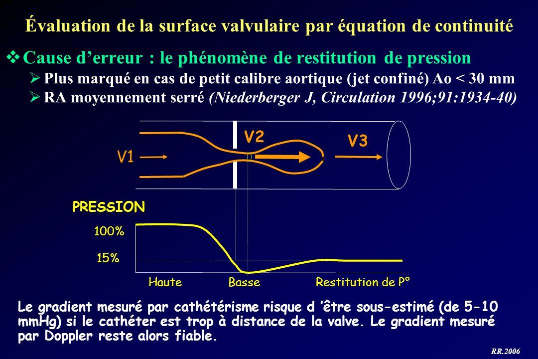 Évaluation de la surface valvulaire par équation de continuité