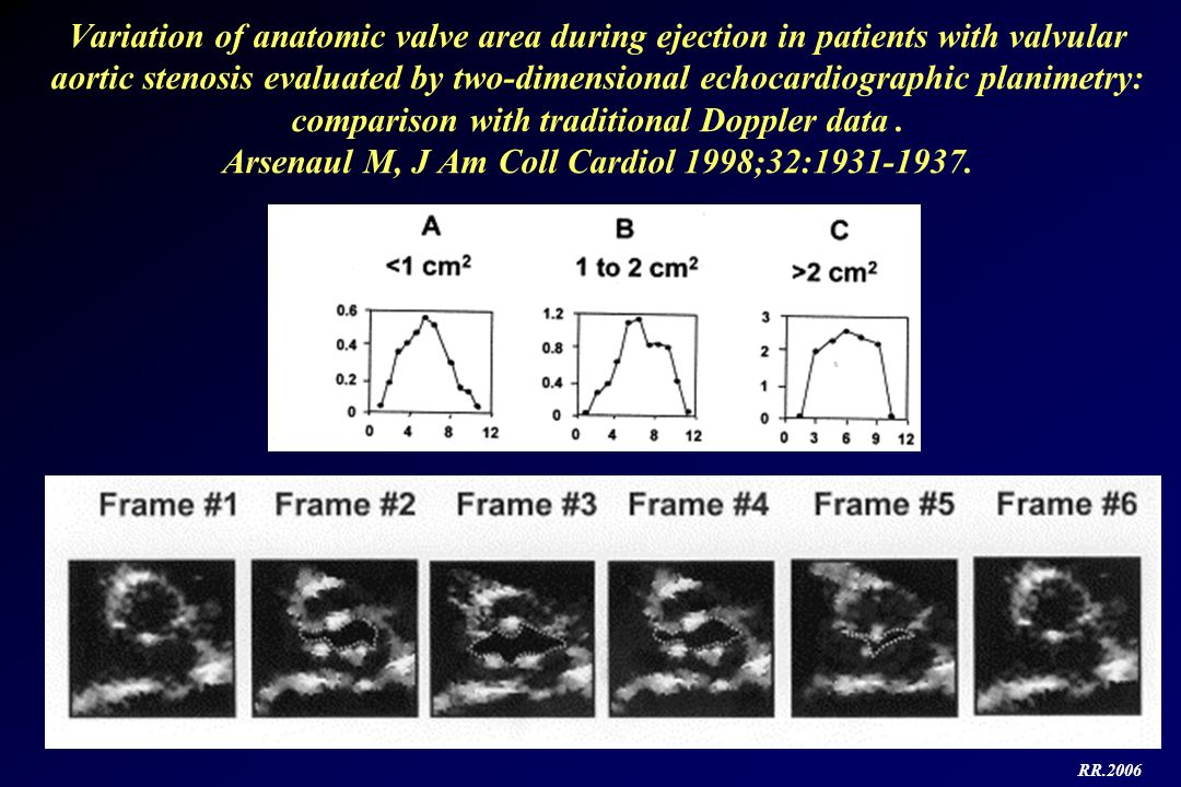 Variation of anatomic valve area during ejection in patients with valvular aortic stenosis evaluated by two-dimensional echocardiographic planimetry: comparison with traditional Doppler data . Arsenaul M, J Am Coll Cardiol 1998;32:1931-1937.