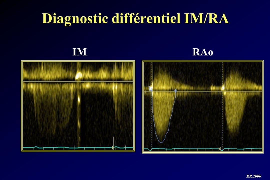 Diagnostic différentiel IM/RA