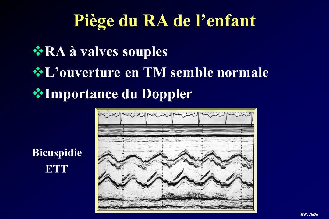 Piège du RA de l'enfant RA à valves souples