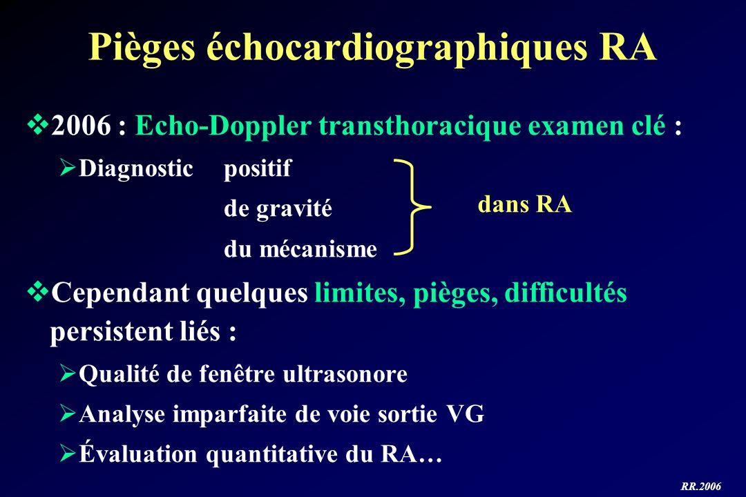 Pièges échocardiographiques RA