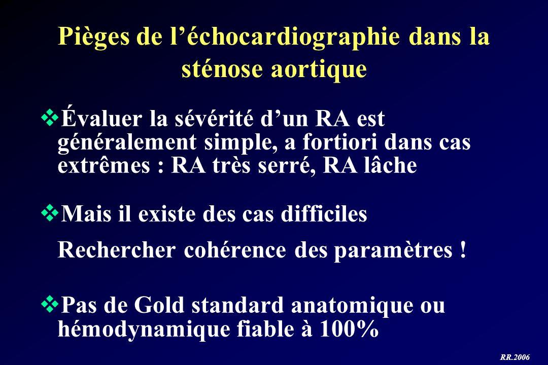Pièges de l'échocardiographie dans la sténose aortique