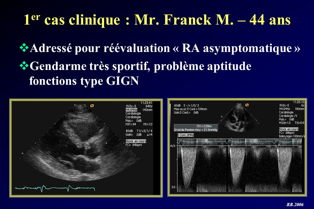 1er cas clinique : Mr. Franck M. – 44 ans