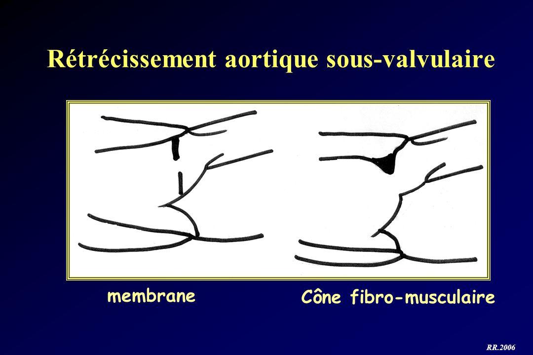 Rétrécissement aortique sous-valvulaire