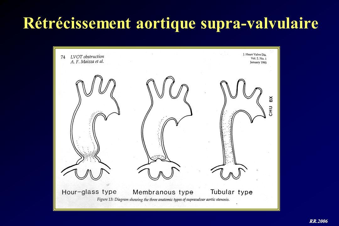 Rétrécissement aortique supra-valvulaire
