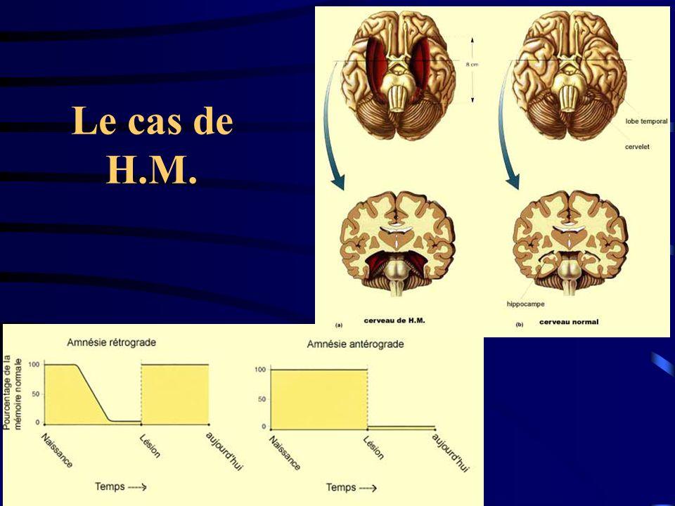 Le cas de H.M.