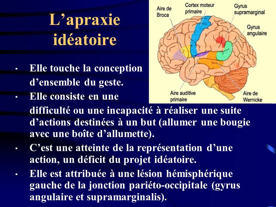 L'apraxie idéatoire Elle touche la conception d'ensemble du geste.