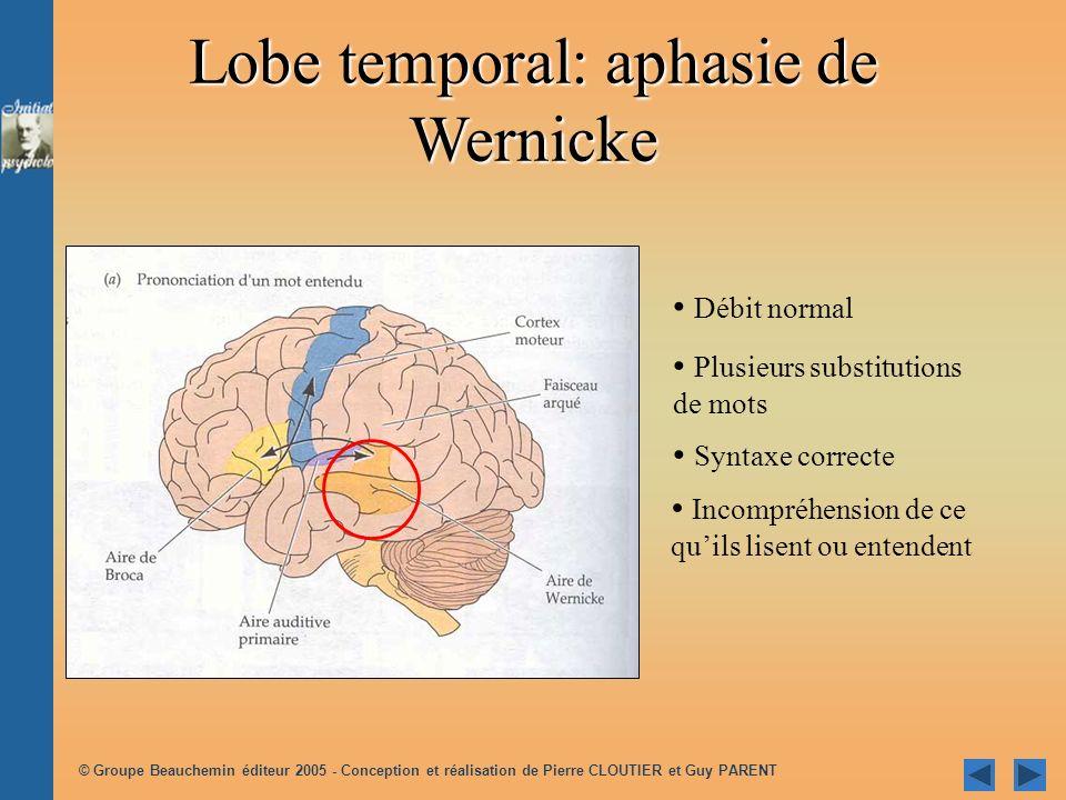 Lobe temporal: aphasie de Wernicke