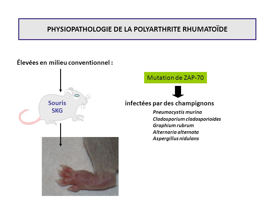 PHYSIOPATHOLOGIE DE LA POLYARTHRITE RHUMATOÏDE