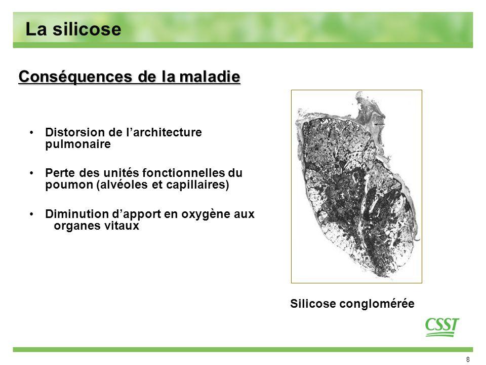 La silicose Conséquences de la maladie
