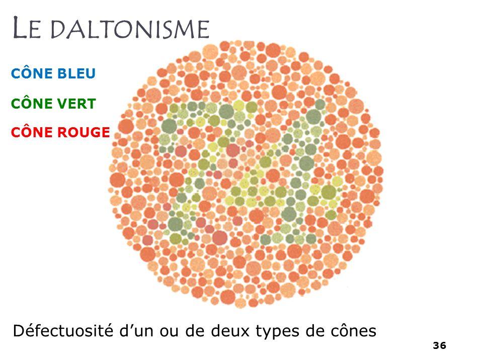 Le daltonisme Défectuosité d'un ou de deux types de cônes CÔNE BLEU