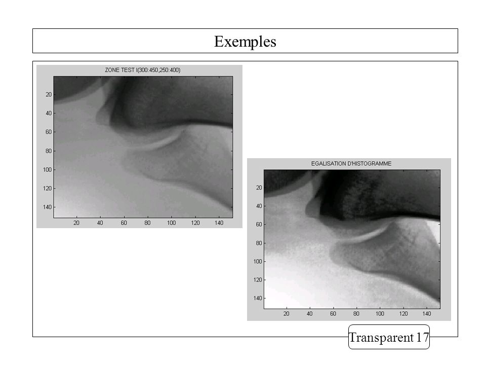 Exemples Transparent 17