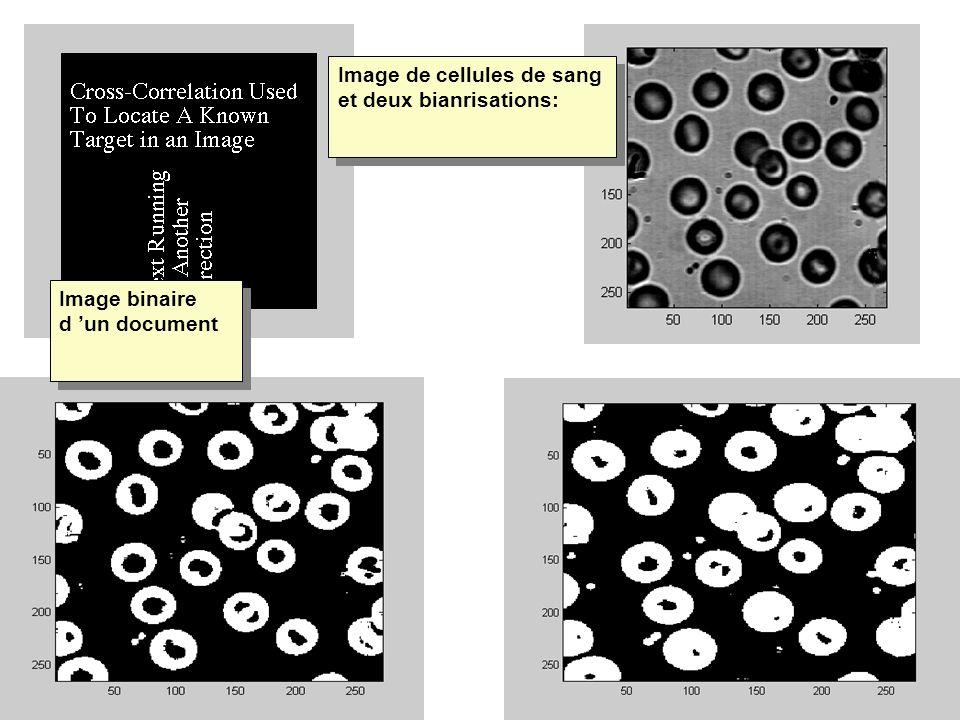 Image de cellules de sang et deux bianrisations: