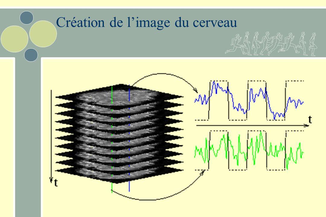 Création de l'image du cerveau