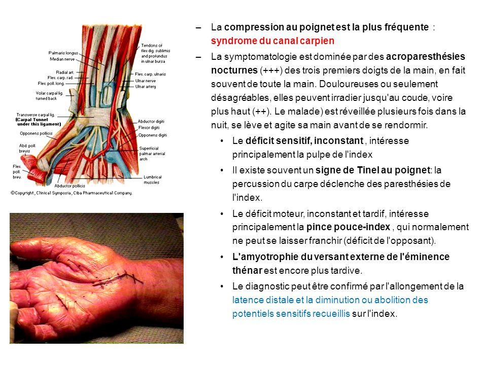 La compression au poignet est la plus fréquente : syndrome du canal carpien