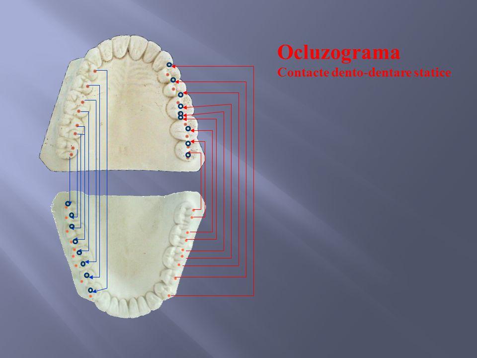 Ocluzograma Contacte dento-dentare statice