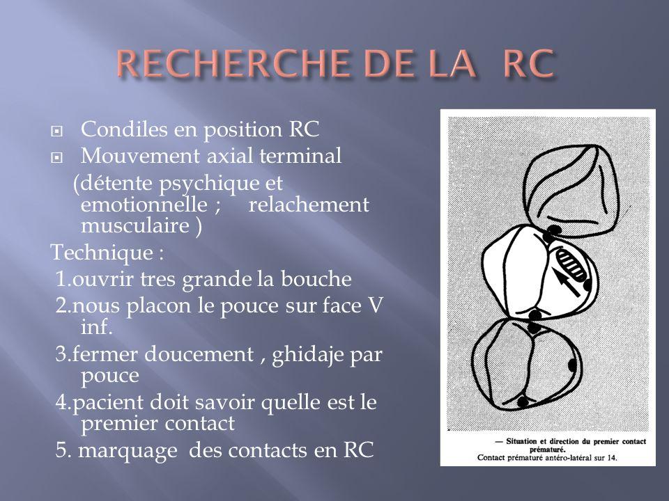 RECHERCHE DE LA RC Condiles en position RC Mouvement axial terminal