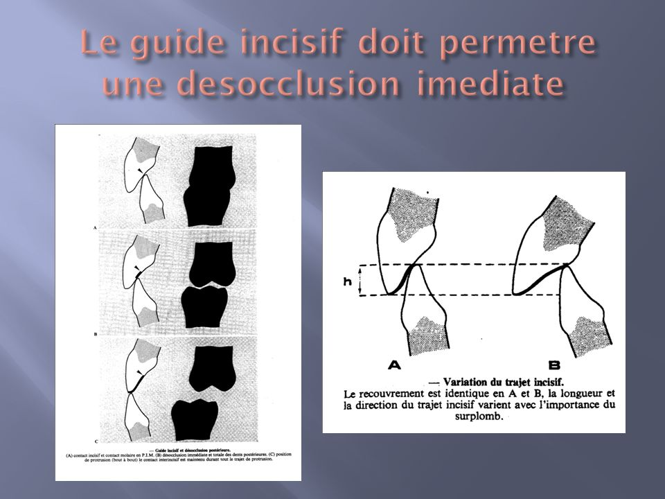 Le guide incisif doit permetre une desocclusion imediate