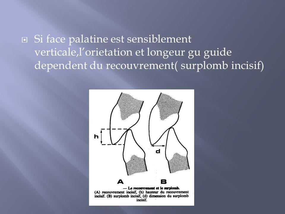Si face palatine est sensiblement verticale,l'orietation et longeur gu guide dependent du recouvrement( surplomb incisif)