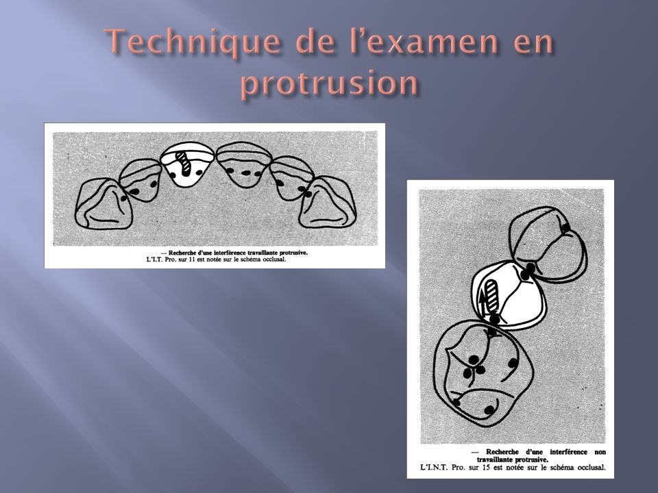 Technique de l'examen en protrusion