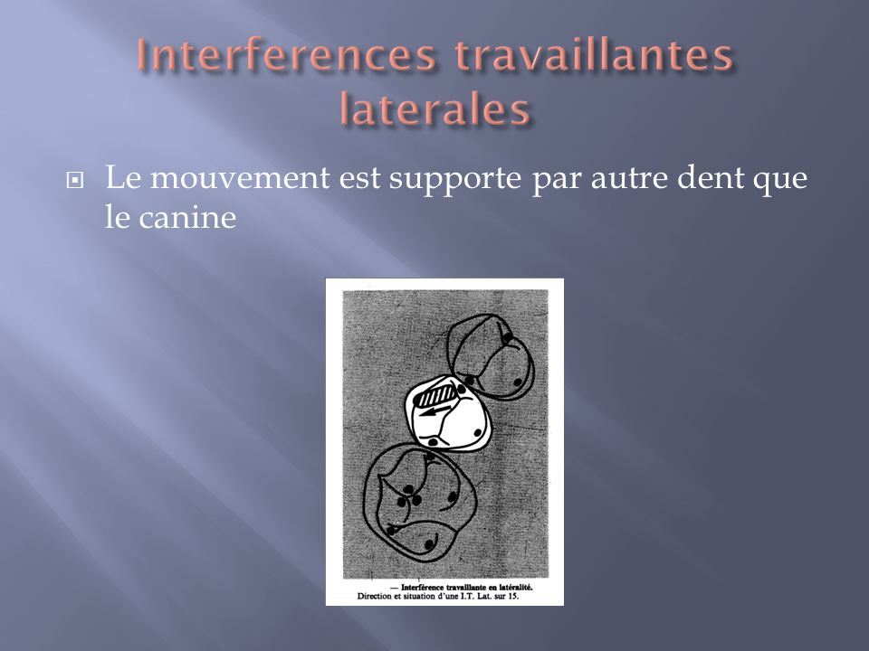 Interferences travaillantes laterales