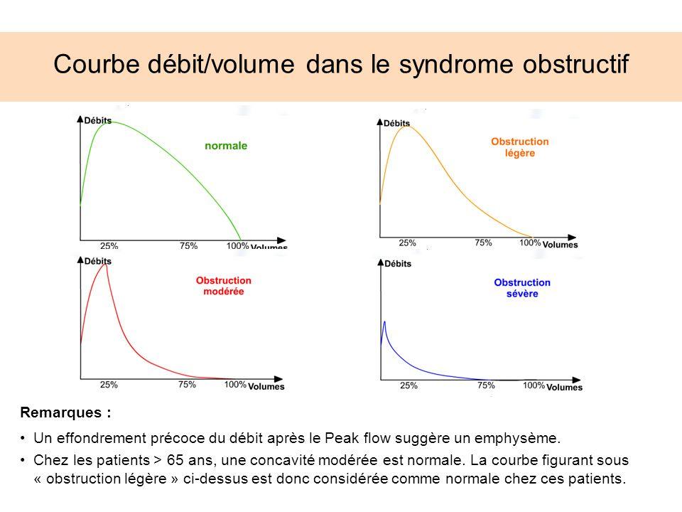 Courbe débit/volume dans le syndrome obstructif