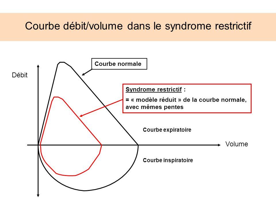 Courbe débit/volume dans le syndrome restrictif