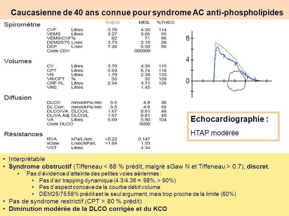 Caucasienne de 40 ans connue pour syndrome AC anti-phospholipides