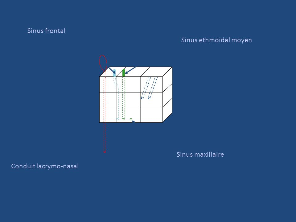 Sinus frontal Sinus ethmoïdal moyen Sinus maxillaire Conduit lacrymo-nasal