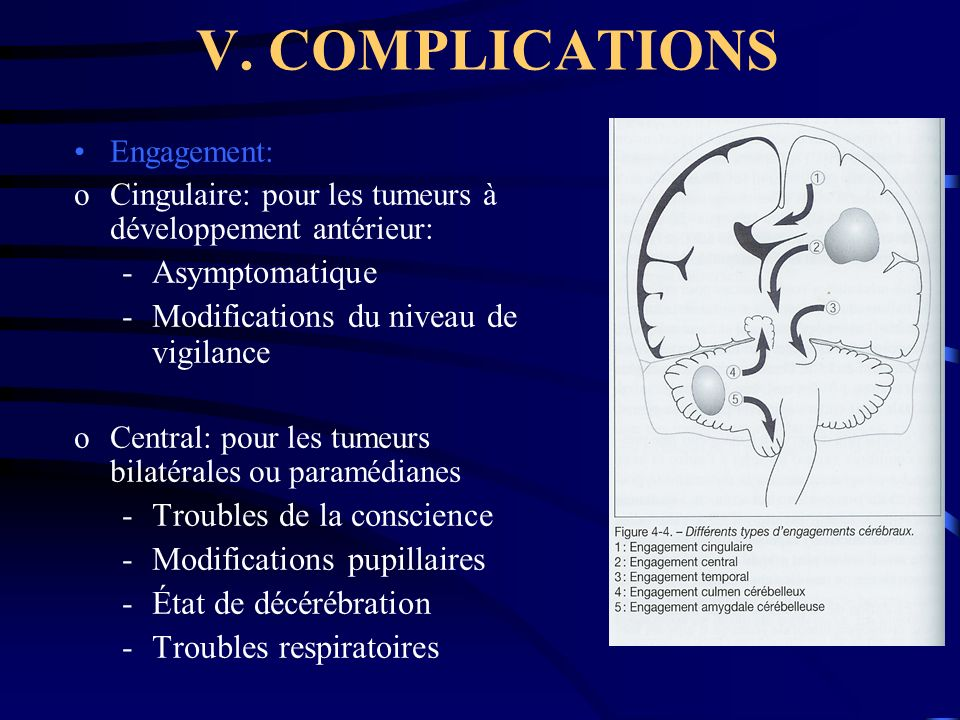V. COMPLICATIONS Asymptomatique Modifications du niveau de vigilance