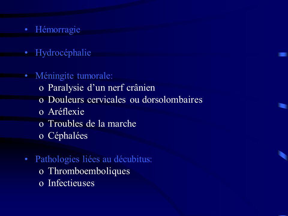 Paralysie d'un nerf crânien Douleurs cervicales ou dorsolombaires