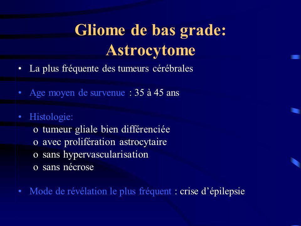 Gliome de bas grade: Astrocytome