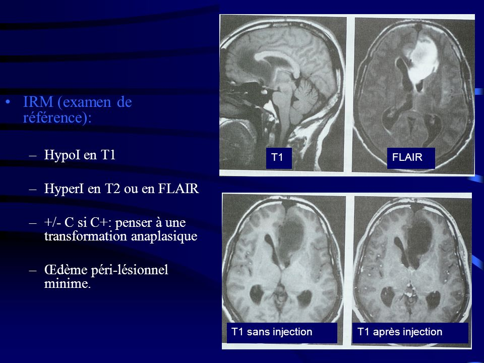 IRM (examen de référence):