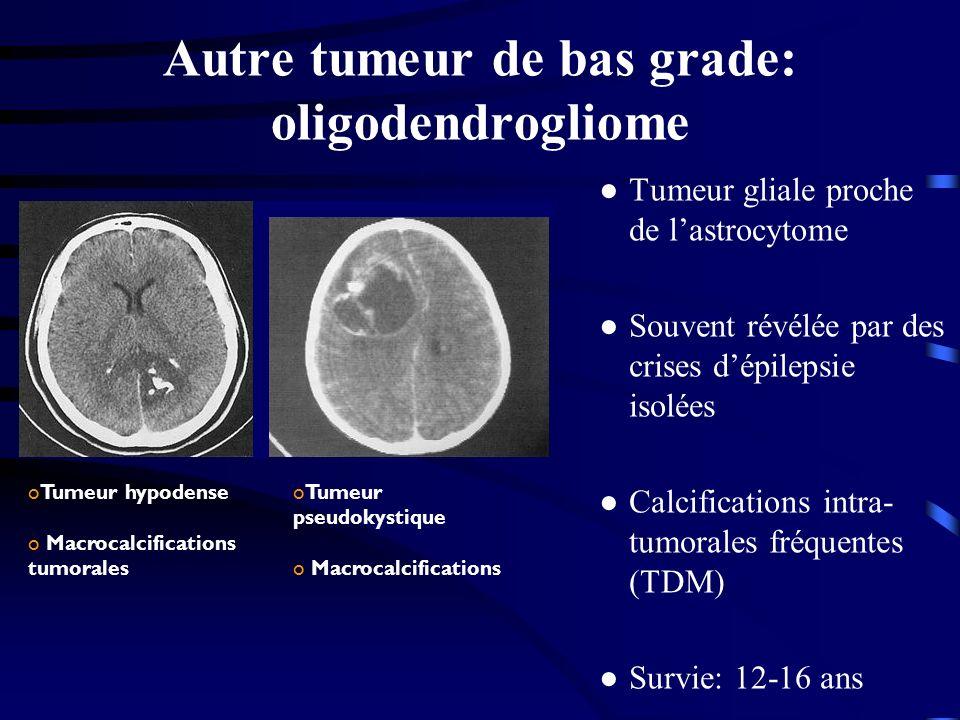 Autre tumeur de bas grade: oligodendrogliome