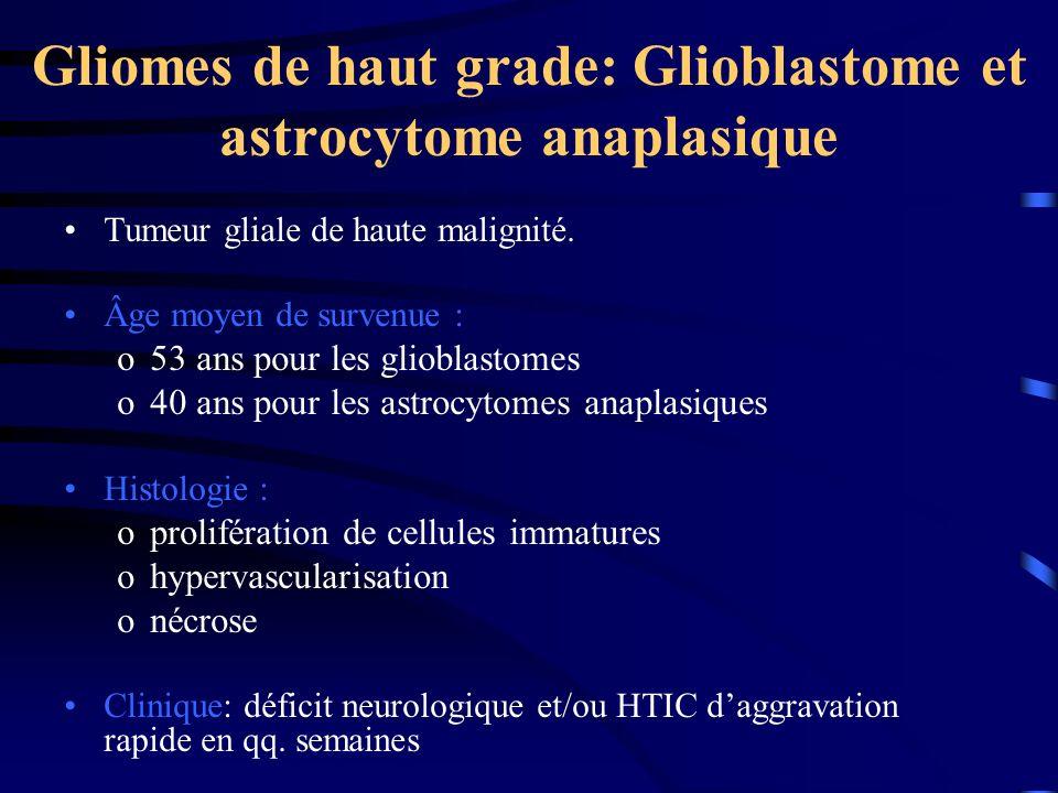 Gliomes de haut grade: Glioblastome et astrocytome anaplasique
