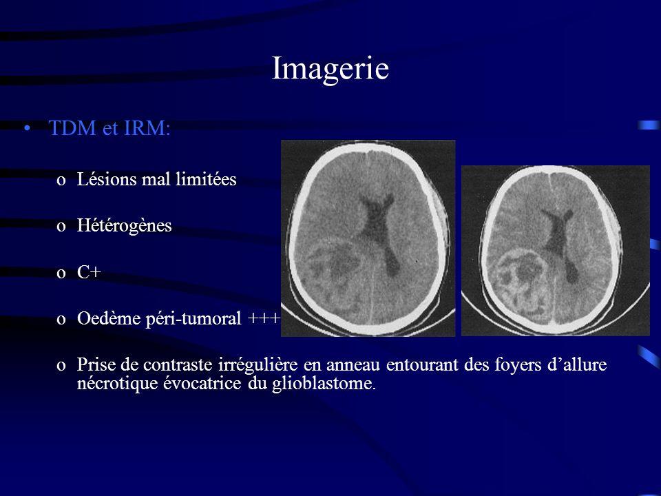 Imagerie TDM et IRM: Lésions mal limitées Hétérogènes C+