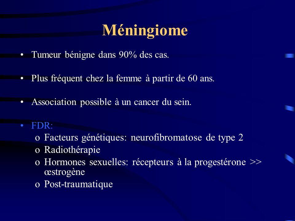 Méningiome Facteurs génétiques: neurofibromatose de type 2