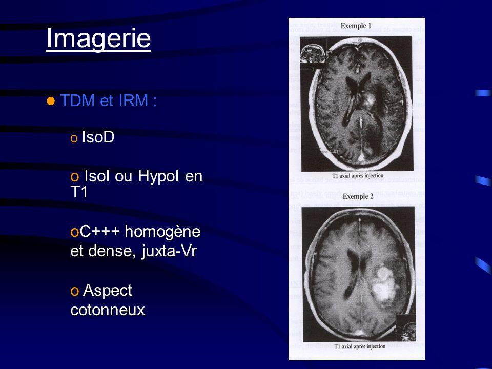 Imagerie IsoI ou HypoI en T1 C+++ homogène et dense, juxta-Vr