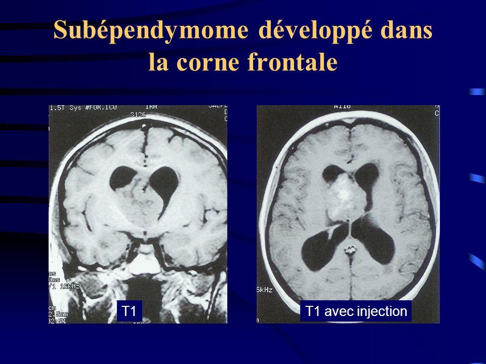 Subépendymome développé dans la corne frontale