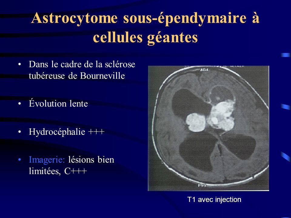 Astrocytome sous-épendymaire à cellules géantes