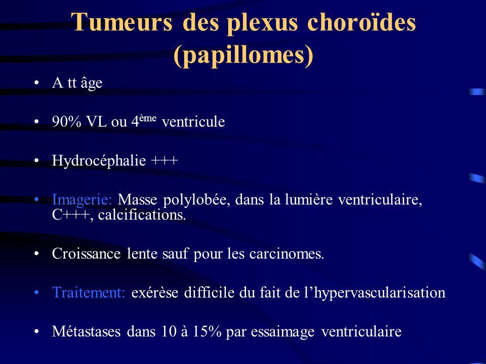 Tumeurs des plexus choroïdes (papillomes)