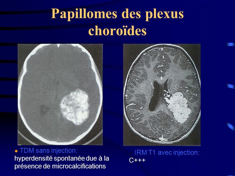 Papillomes des plexus choroïdes