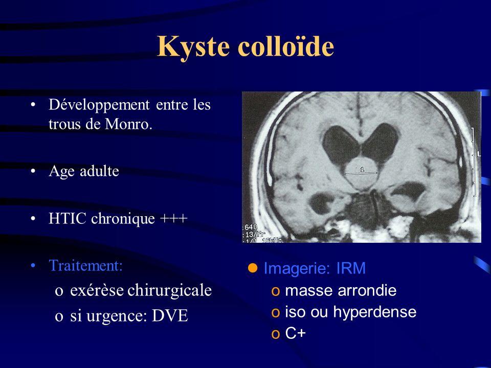 Kyste colloïde exérèse chirurgicale si urgence: DVE