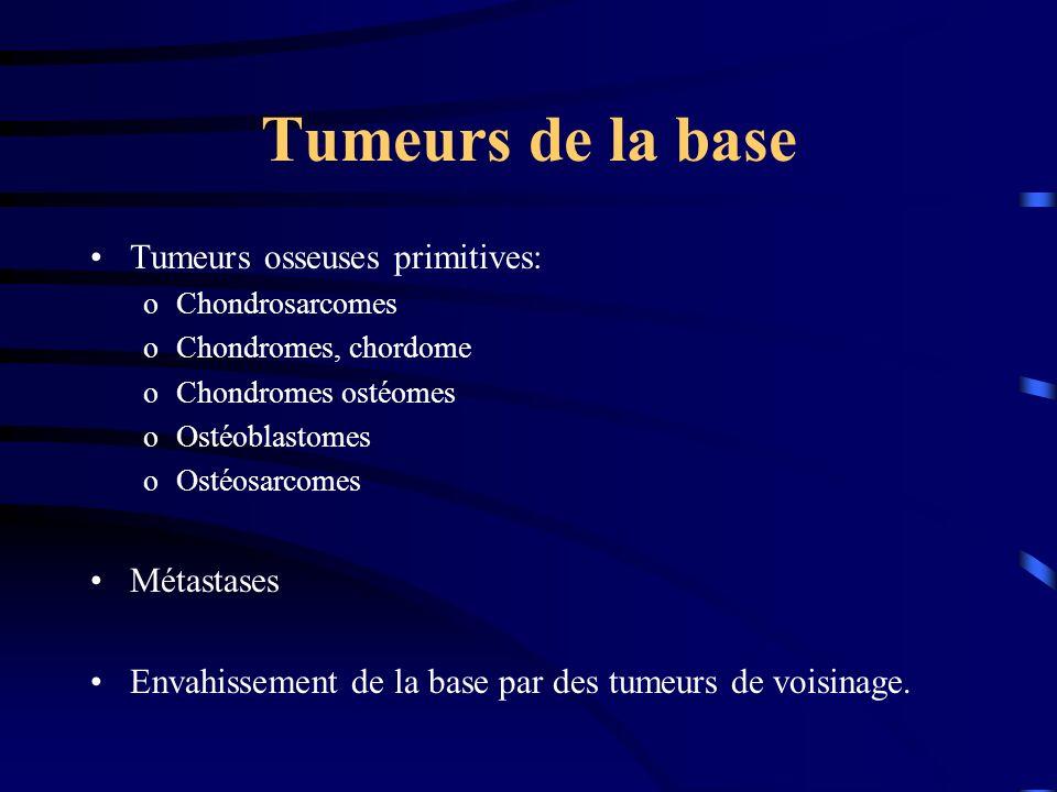 Tumeurs de la base Tumeurs osseuses primitives: Métastases