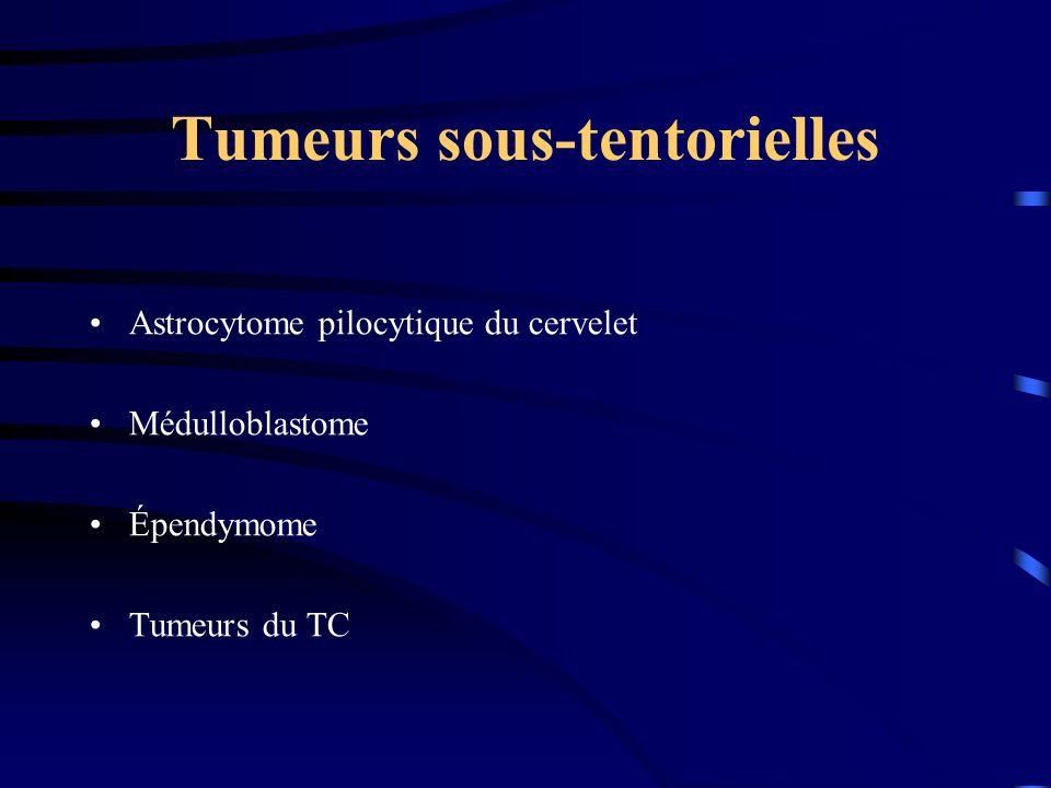 Tumeurs sous-tentorielles